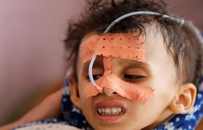 الأمم المتحدة: يجب رفع حصار اليمن نهائيا