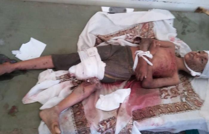 بالصور.. ضحايا قصف حوثي بالصواريخ على الحديدة