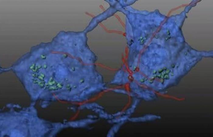 تعكس الخلايا الجذعية المكونة للدم الأضرار الحادثة بسبب الاضطرابات العصبية العضلية