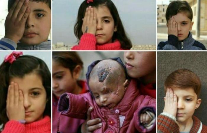 صورة تفطر القلب.. كريم طفل سوري فقد عينه وكسرت جمجمته