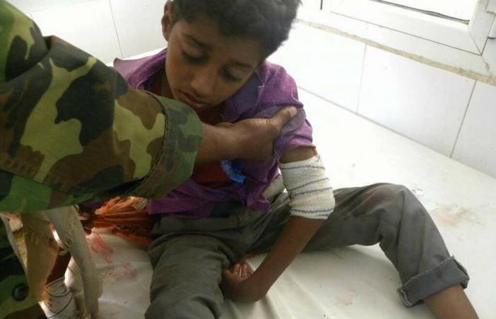 بالصور.. مجازر حوثية جديدة ضد أطفال تعز
