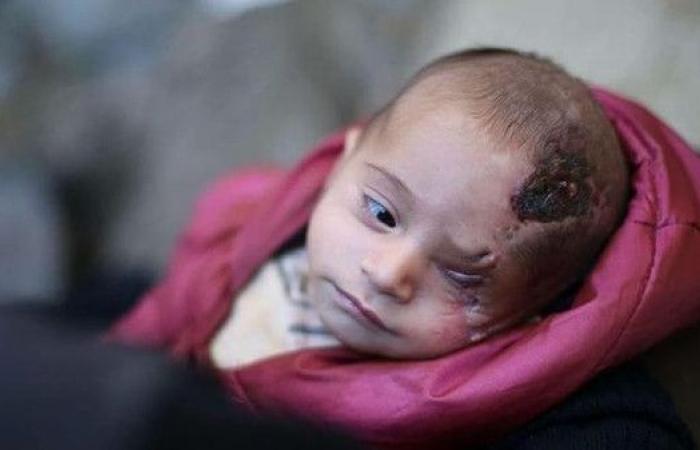 أكثر من 5 ملايين تضامنوا مع الطفل السوري كريم