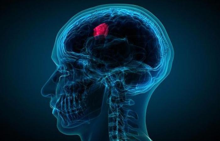 """""""فيروس علاجي"""" يمكن أن يشفي من سرطان الدماغ"""