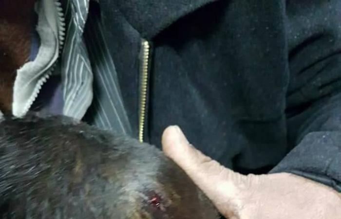 مأساة طفل فلسطيني اخترقت رصاصة إسرائيلية رأسه