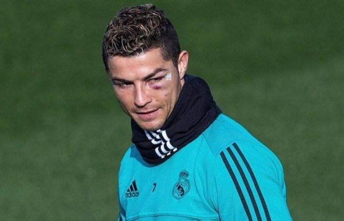 ريال مدريد يفقد رونالدو بسبب الاصابة!