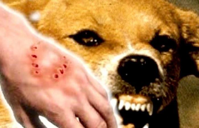 مواطنة تتعرض لعضة كلب.. وهذا ما أوضحته
