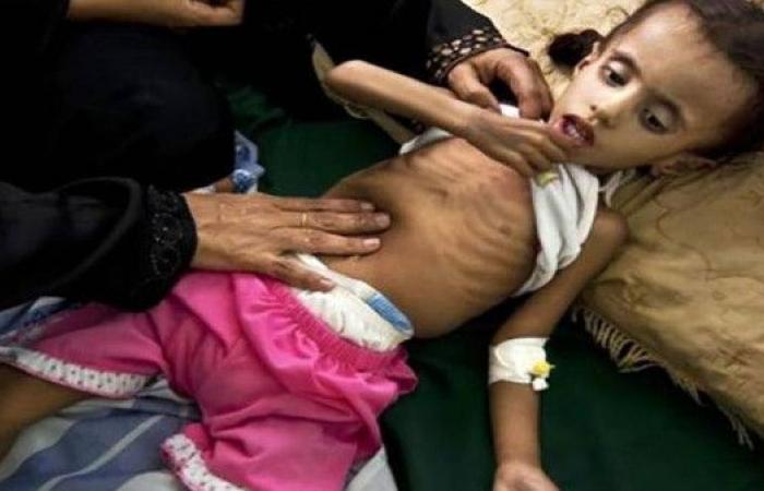 صور.. تلاعب الحوثي بالإغاثة يهدد عشرات الأطفال بالموت