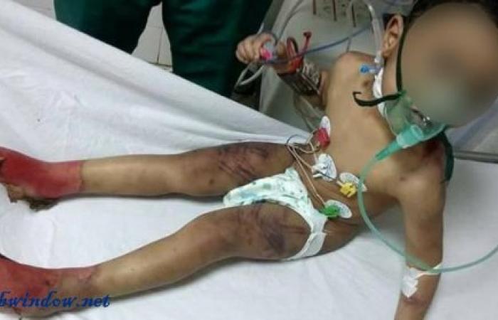 صور بشعة.. أم تعذب طفلها بطريقة وحشية في مصر
