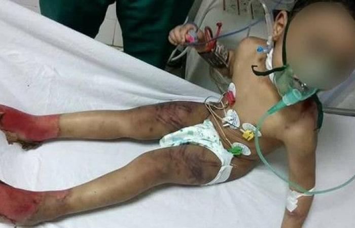 حبس مصرية وزوجها عذبا طفلها بطريقة وحشية