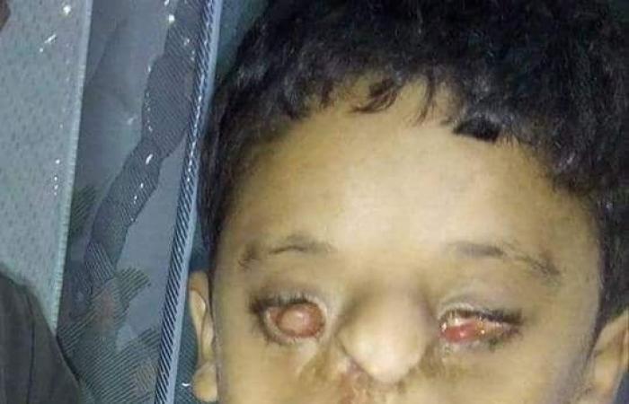 صور لمأساة طفلين مصريين ولدا بدون عينين والسبب..