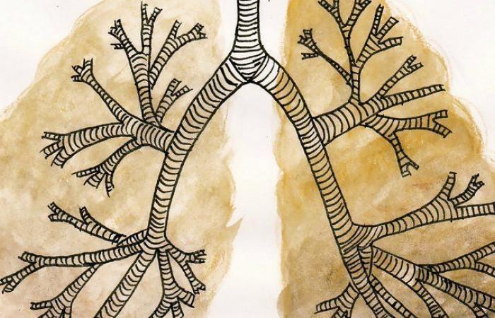 اكتشاف معدة وأمعاء داخل سرطانات رئوية: السرطان يتغير ويفاجئ
