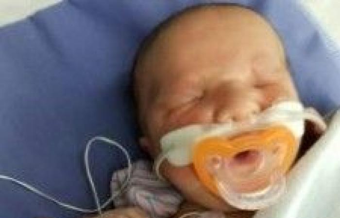بالصور.. ولادة طفل دون عينين !