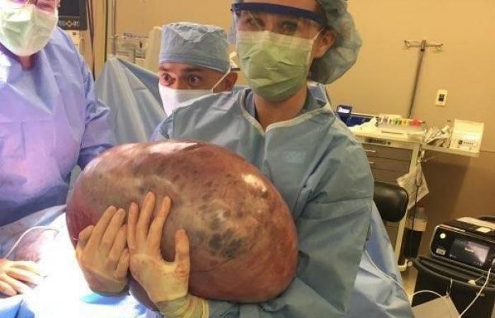زاد وزنها بشكل كبير والسبب لم يكن إلا ورم في مبيضها وزنه 23 كيلو