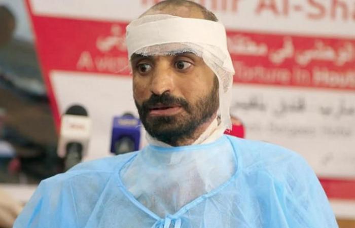 منير الشرقي... قصة بقايا جسد محترق تختزل إجرام الحوثيين