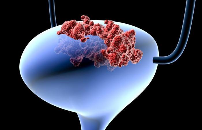 ما هو سبب شيوع سرطان المثانة في الدول العربية أكثر من بقية دول العالم