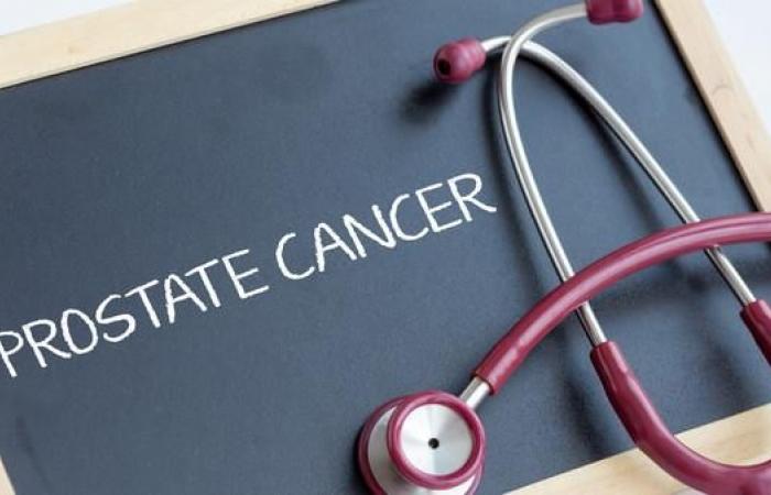 خبر سار.. استبيان طبي قد ينقذ الآلاف من مرضى البروستات
