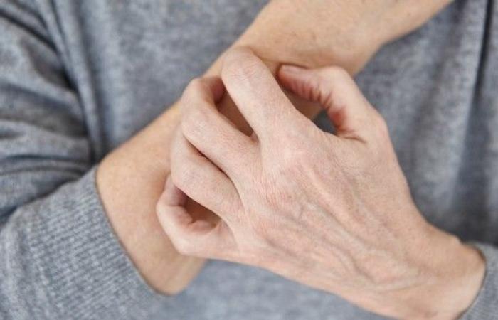 10 من مسببات الحساسية غريبة ومدهشة