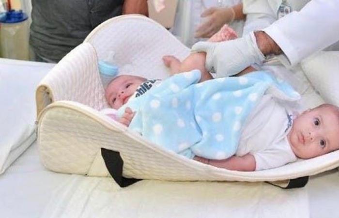 الخليح | فصل السيامي الليبي في الرياض.. وهذه نسبة نجاح العملية