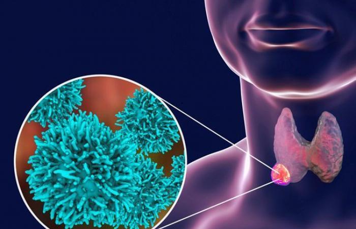 سرطان الدرق أو سرطان الغدة الدرقية – كل ما يجب أن تعرفه