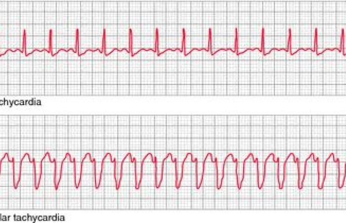 تسرع القلب البطيني: الأسباب والأعراض والتشخيص والعلاج