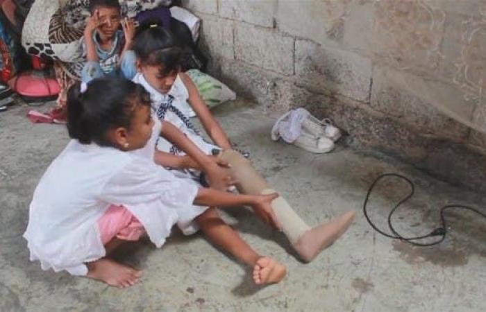 اليمن | اليمن.. فرح يتحول مأتما بعد مقتل طفلين شقيقين بلغم حوثي
