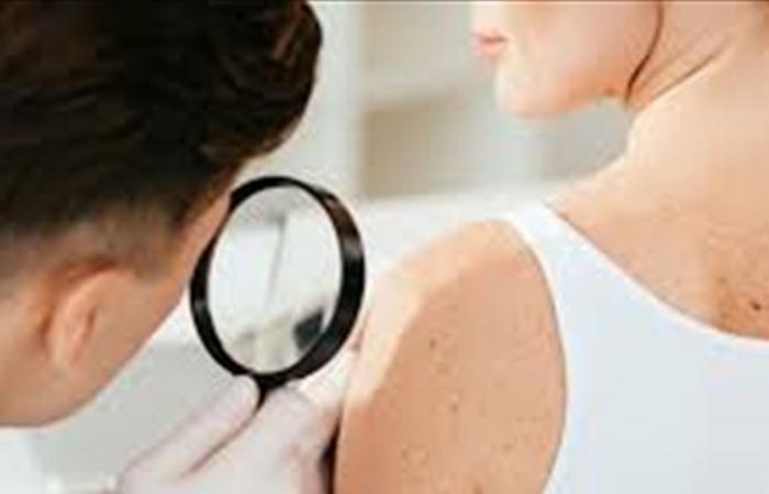 هل من علاقة بين الوراثة والإصابة بسرطان الجلد؟!