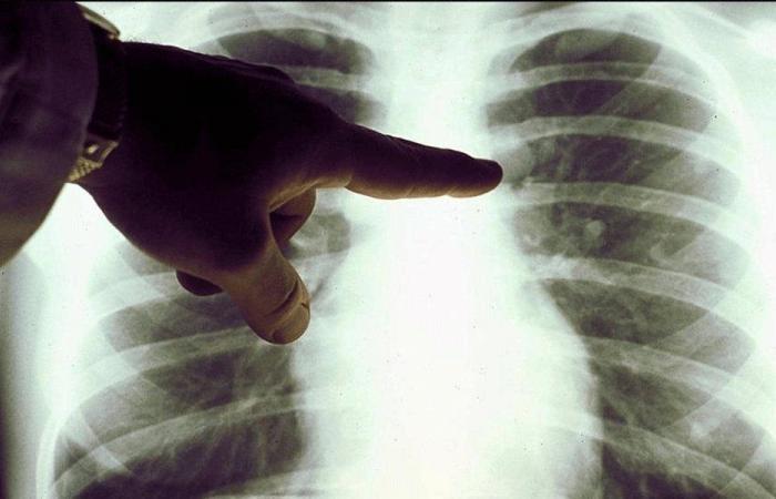 لتجنّب 90% من إصابات سرطان الرئة…