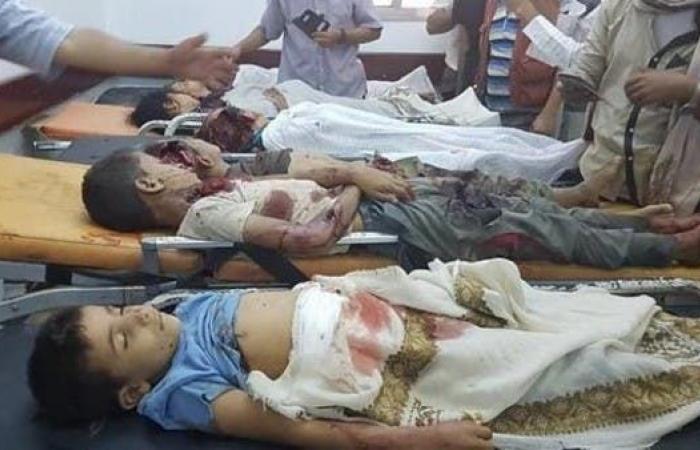 اليمن | حصيلة ثقيلة لضحايا صواريخ الحوثي من المدنيين في مأرب