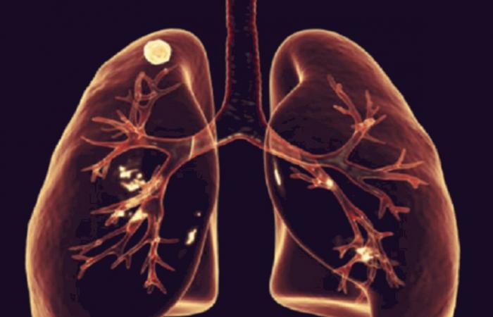 علامة خطيرة بالأظافر.. قد تعني إصابتك بسرطان الرئة!