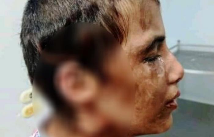 مصر | طفلة مصرية تتعرض لتعذيب وحشي على يد مخدوميها