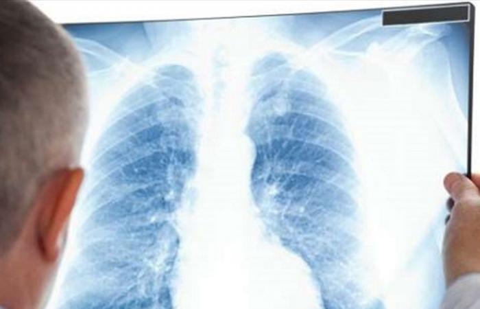 علامات تشير إلى الإصابة بفيروس كورونا طويل الأمد