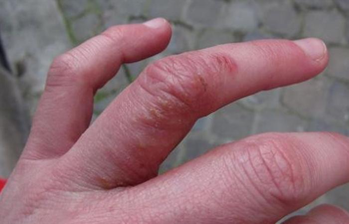 هل تظهر البقع الحمراء على طول أصابعكم؟ إليكم ما يكشفه هذا عن صحتكم