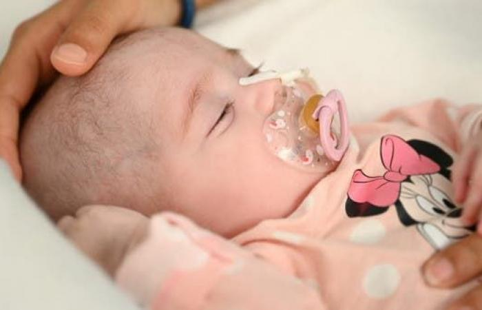 زراعة قلب رائدة لطفلة عمرها شهران في إسبانيا تنقذ حياتها