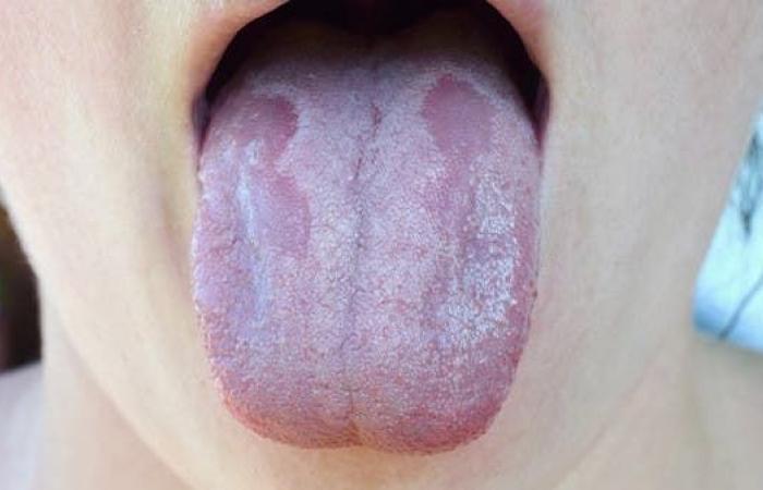 أعراض وعلاج الفطر الأبيض والأصفر.. منظمة الصحة توضح