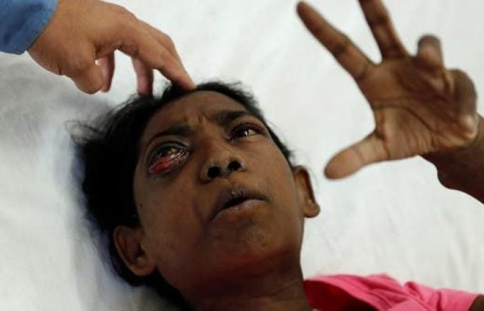 إزالة عيون وأنوف..45 ألف إصابة بالفطر الأسود في الهند
